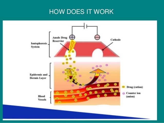 iontophoresis-4-638